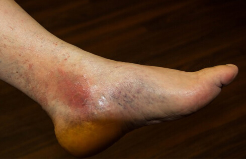 Bruised and redenned foot and ankle