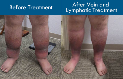 Lymphedema May be Primary or Secondary