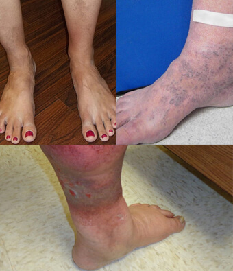 legs with brownish discolored skin patches