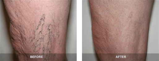 Before and after photos of leg that received vein treatment