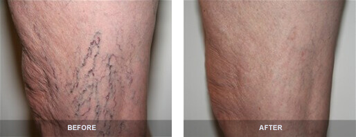 Before and After Spider Vein Treatment on Legs
