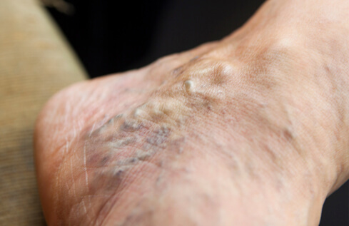 Do Not Ignore the Symptoms of Leg Varicose Veins
